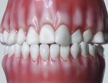 Nimro Dental | Medical Animation