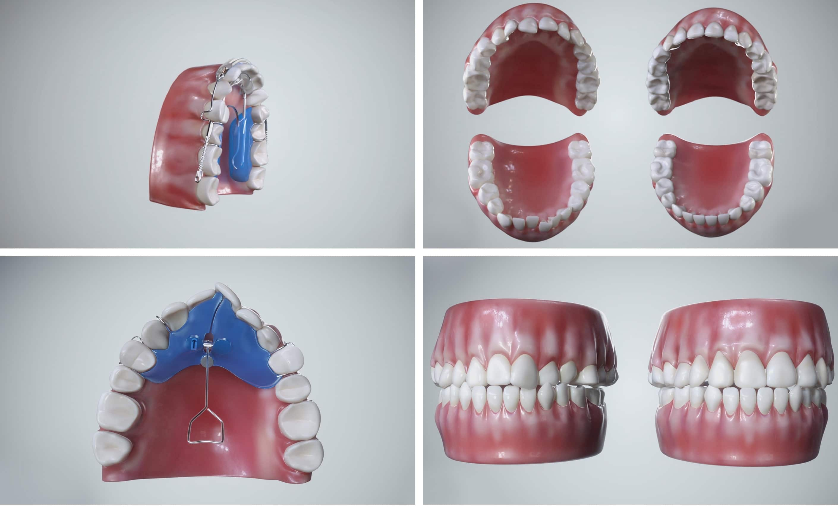 stas3dart-nimro-dental-medical-animation-dreamoc