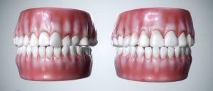 Nimro Dental | Medical Animation for Dreamoc Technology | Stas3dArt | London